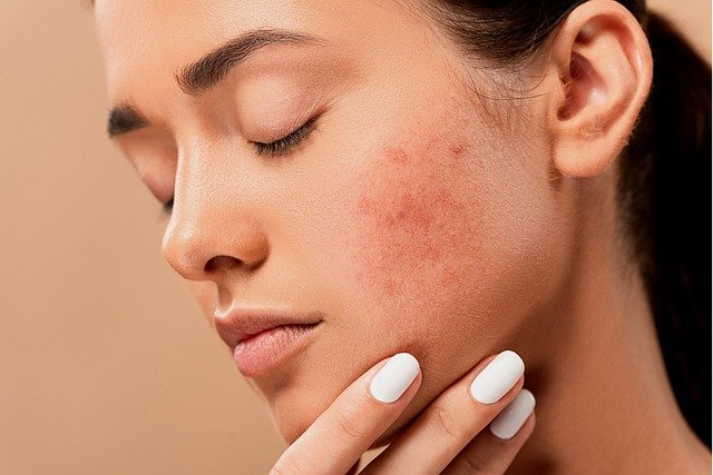 eczema skin rash